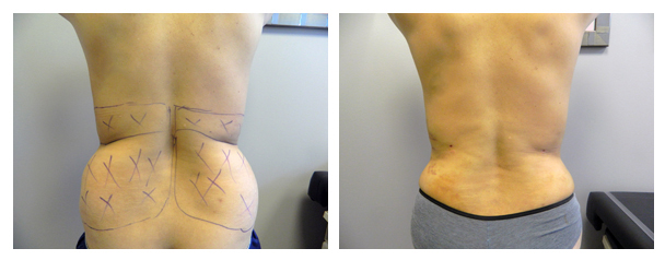 Body contouring before and after