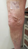 Diehl Leg Before Phlebectomy