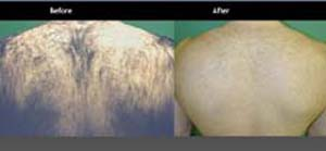 laser hair removal from male back