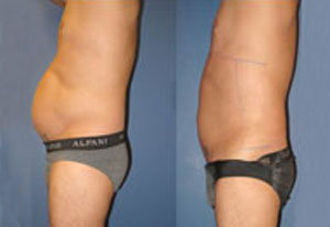 Smart Lipo of Male Abdomen