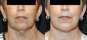SmartLipo Skin Tightening