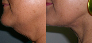 SmartLipo Skin Tightening, Chin