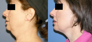 SmartLipo Skin tightening, Neck