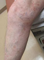 Varicose Vein Treatment: After